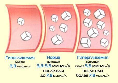 Углеводы: сложные, простые, медленные, быстрые. Список, таблица совместимости продуктов питания для похудения, набора мышечной массы, сушки тела
