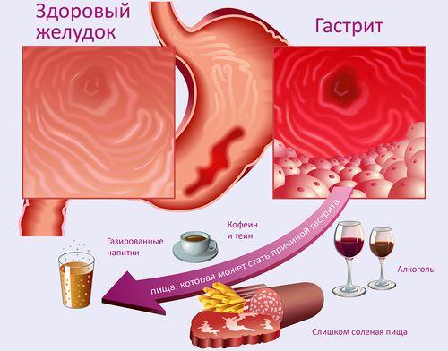 Диета по группе крови 2 положительная для похудения